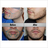 Men Beard Hair Transplant Services