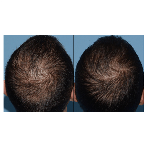 Platelet Rich Plasma Hair Therapy Services
