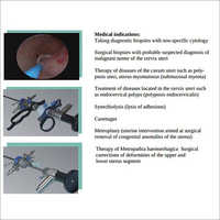 Office Hysteroscopy Set