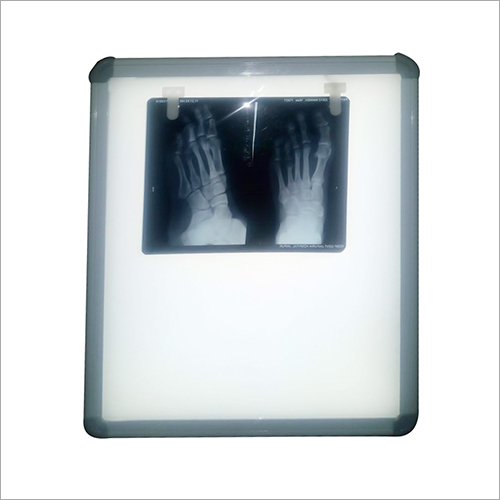 Sensor LED X Ray View Box