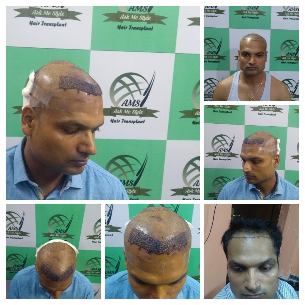 Men Fue Hair Transplant Services