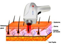 808nm laser hair removal machine