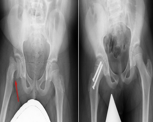 Slipped Capital Femoral Epiphysis Treatment Service