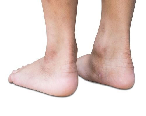 Flat Feet Treatment Service