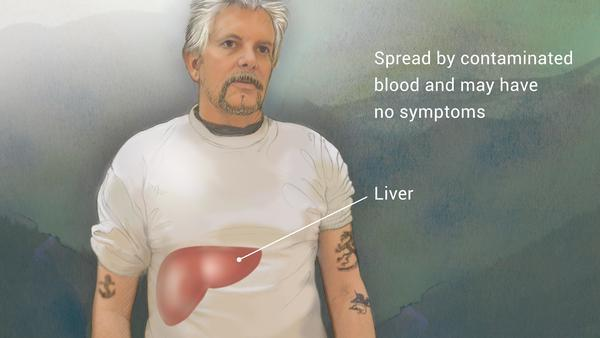 Hepatitis A, B, C, D & E Non Invasive Diagnosis & Treatment