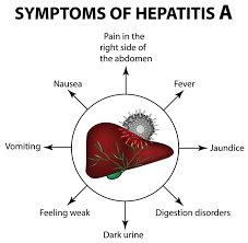 Hepatitis A Diagnosis & Treatment