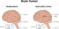 Brain Tumour - Diagnosis & Treatment