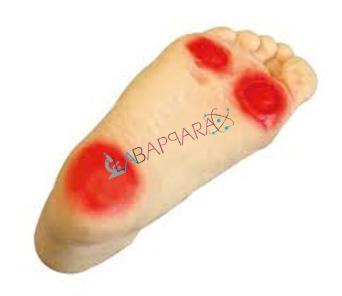 PVC Diabetic Foot Nursing Simulator