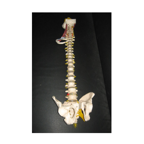 Pathological Spine Model