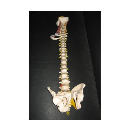 Pathological Spine Model