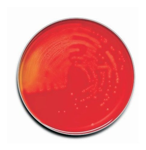 TRYPTIC SOY AGAR (Horse Blood 5%)