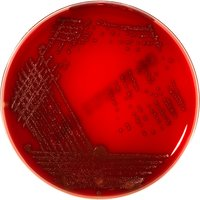 GARDNERELLA AGAR (Sheep Blood 5%)