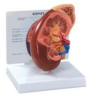 Human Kidney Model