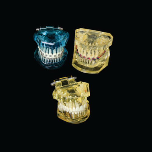 Dental Orthodontic Jaw Model