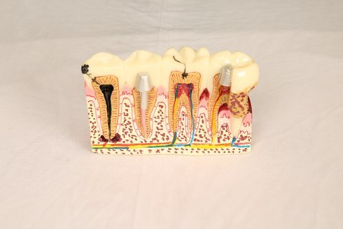 Three Tooth Model