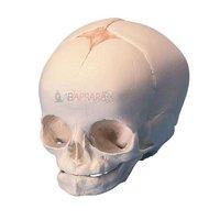 Human Fetal Skull (Fibre Glass Models)