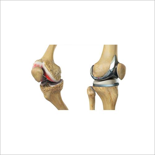 Titanium Hemi Knee Joint Casting