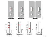 Treponema Pallidum(TP) antibody Cassette