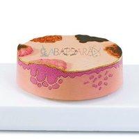 Skin Cancer (Model)