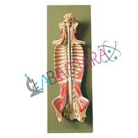 Spinal Cord in the Spinal Canal (Model)