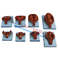 Development of Fetus/Embryo set of 9