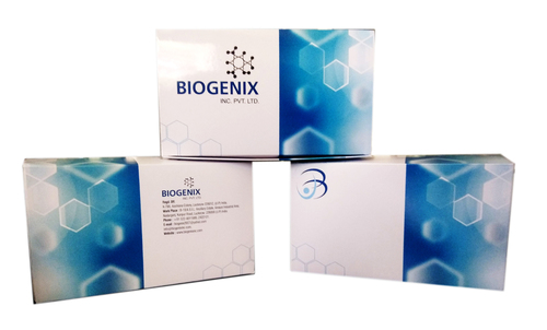 Hepatitis E Virus IgM (HEV IgM) Kit