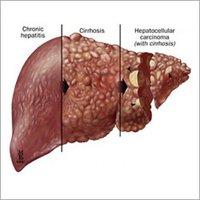Cirrhosis Treatment Herbal Drops