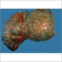 Cirrhosis Herbal Drops