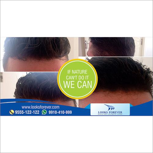 Mens Hair Replacement