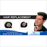 Men's Non-Surgical Hair Replacement