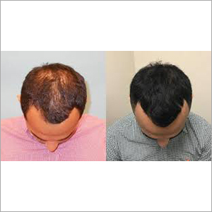 PRP Hair Growth