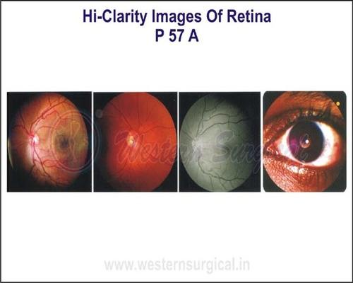 Hi-Clarity Images of Retina