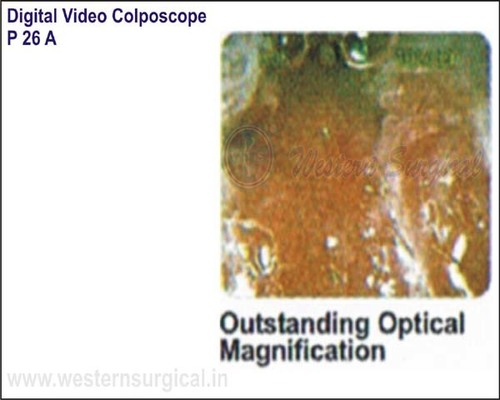Digital Video Colposcope (Outstanding Optical Magnification)