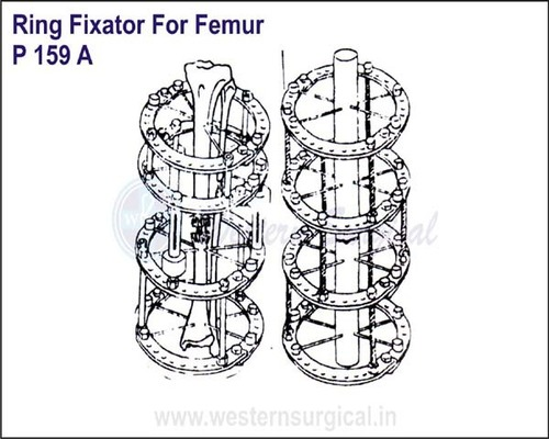 Ring Fixator For FEMUR