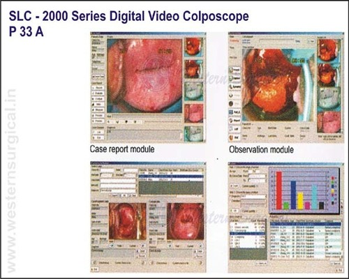 SLC - 2000 Series Digital Video Colposcope