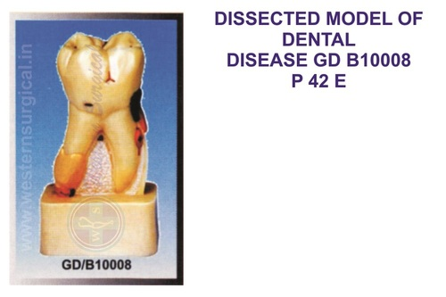 DISSECTED MODEL OF DENTAL DISEASE GD B10008