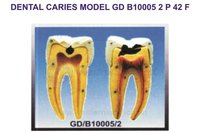 DENTAL CARIES MODEL GD B10005