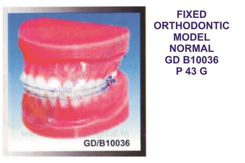 FIXED ORTHODONTIC MODEL NORMAL GD B10036