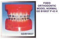 FIXED ORTHODONTIC MODEL NORMAL GD B10037