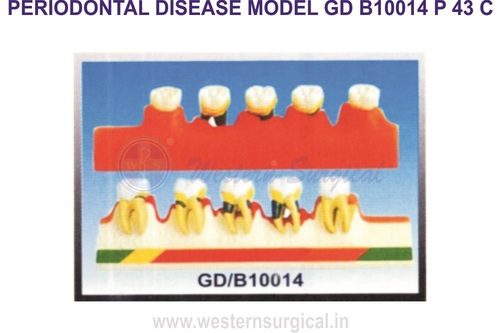 PERIODONTAL DISEASE MODEL