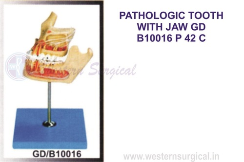 PATHOLOGIC TOOTH WITH JAW