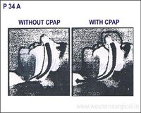 WITHOUT CPAP & WITH CPAP