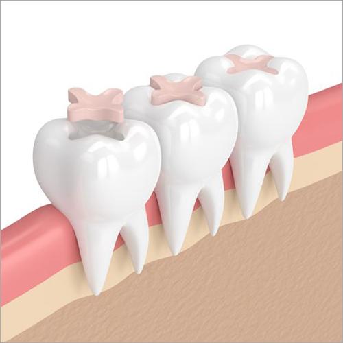 Dental Sealant Fluid