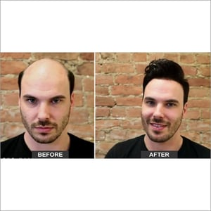 Hair Replacement  Service