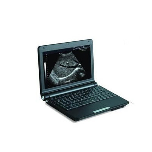 Laptop Ultrasound Scanner