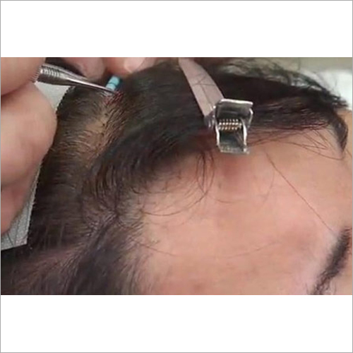 Hair Replacement Treatment