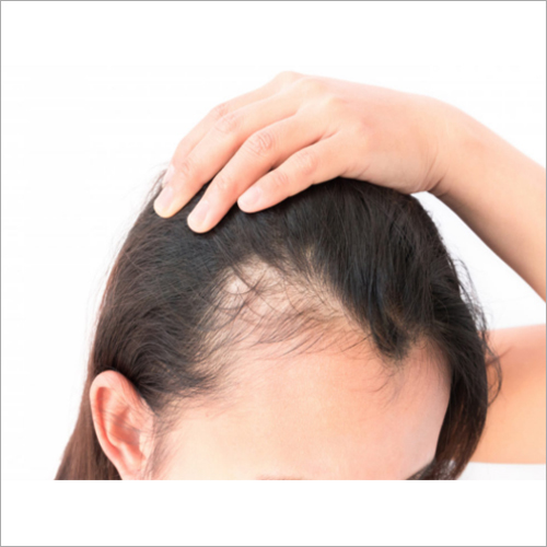 Platelet Rich Plasma - PRP for Hair Regrowth