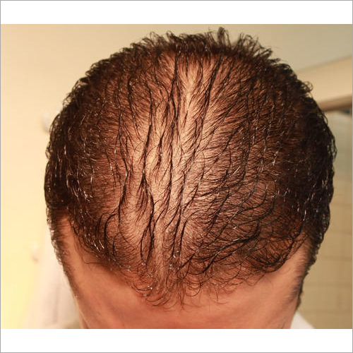 Stem Cell Therapy for Hair Regrowth