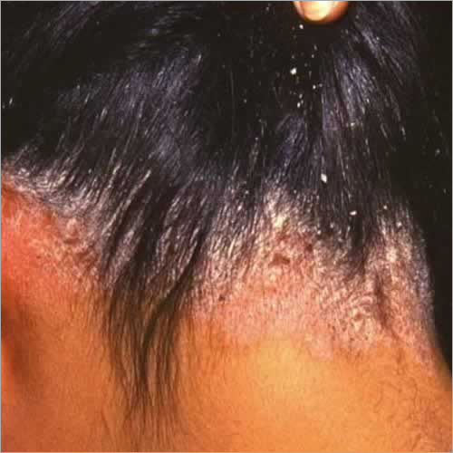Scalp Peeling Therapy for Dandruff Treatment