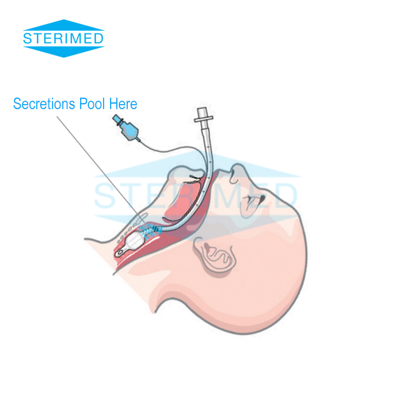 Endotracheal Tube With Subglottic Suction